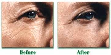 para que sirve el acido retinoico y como se usa
